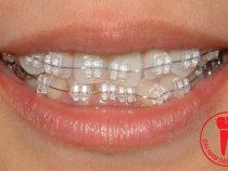 Khắc phục khuyết điểm bằng phương pháp niềng răng móm giá bao nhiêu